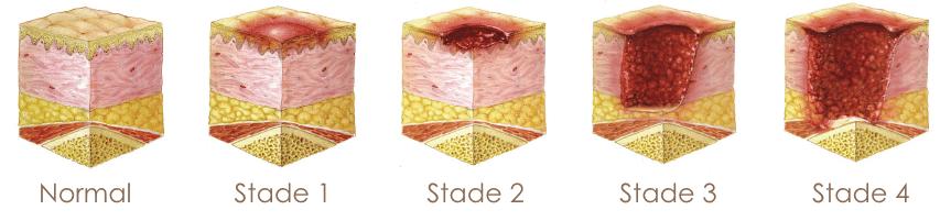 stades et évolution des escarres